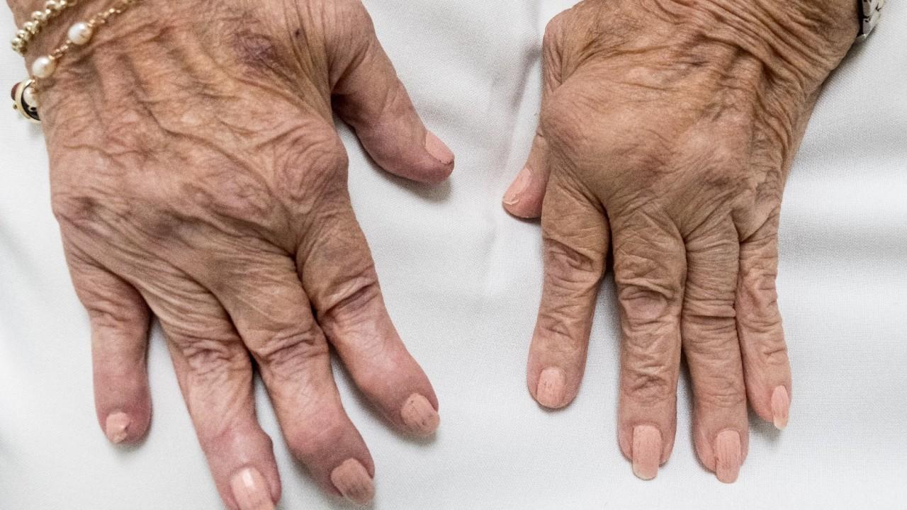 Rheumadiagnostik1